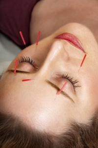 Rejuvenate with Acupuncture in Chobham